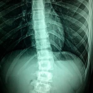 Tetraplejia por Negligencia Médica